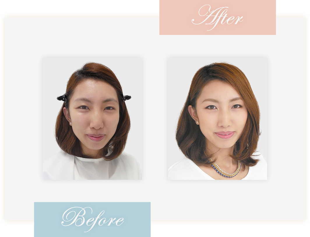 Before&After